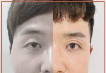 ทำตาสองชั้น โดย AreBeaute Clinic